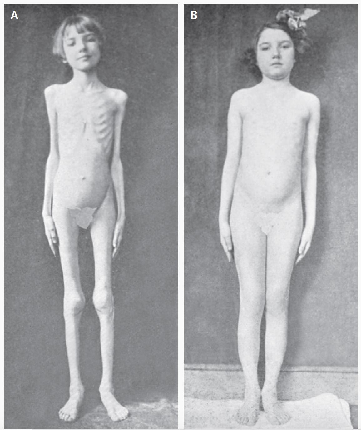 Foto från 1922. En av de första patienterna med typ 1 diabetes att behandlas med insulin.