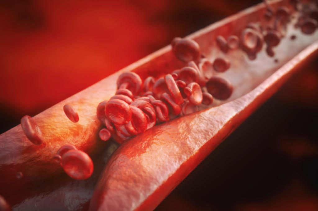 Denna bild visar ett blodkärl med ett plack (förträngning) som försämrar blod genomflödet till följd av åderförfettning (ateroskleros). Denna typen av förändringar i blodkärlen anses vara de absolut vanliga komplikationerna till följd av förhöjt blodsocker.