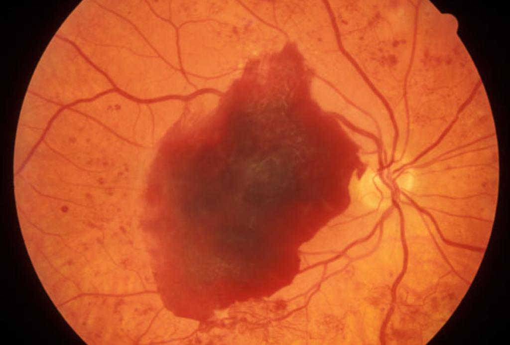 Komplikationer i blodkärlen till följd av typ 1 diabetes. Figures visar en mikroskopisk bild av ögonens näthinna, den röda fläcken är en blödning som beror på försvagade blodkärl.