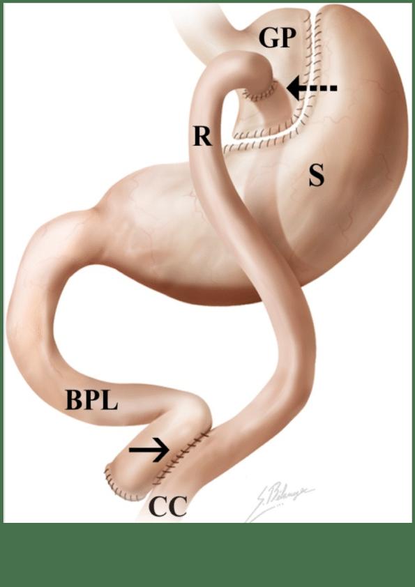 risker med gastric bypass