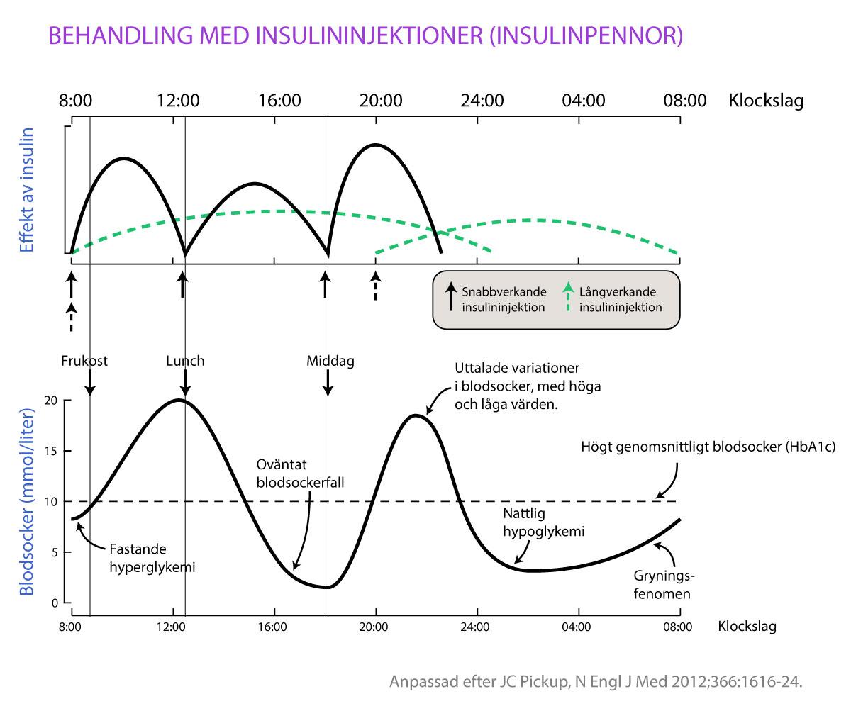 """Upprepade insulininjektioner dagligen innebär att man injicerar snabbverkandeinsulin före måltider och långverkande insulin en eller två gånger dagligen.Denna typ av behandling leder till att vissa personer har svårt att kontrollera sittblodsocker. Detta yttrar sig genom uttalade svängningar i blodsockret, upprepadeblodsockerfall (även på natten), höga blodsockernivåer på morgonen(""""gryningsfenomen"""") samt högt blodsocker vid fasta."""