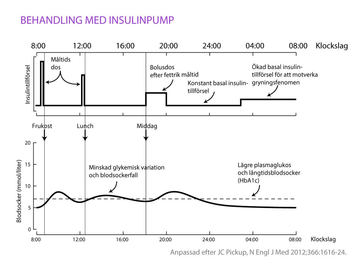 Insulinpump möjliggör en stabil infusion (kontinuerlig injektion) av snabbverkandeinsulin från en bärbar insulinpump. Hastigheten kan anpassas efter ditt insulinbehov.Figuren visar hur blodsocker stabiliseras och antal episoder med blodsockerfall ochblodsockerstegringar blir färre. Detta leder även till lägre långtidsblodsocker (HbA1c)