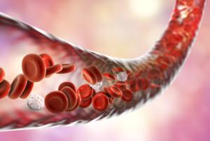 Blodkarl-inflammation-plack-sjudkom-åderförkalkning