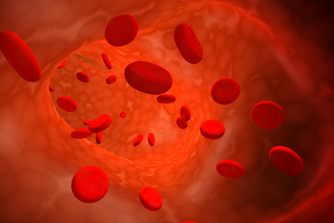 Järnbrist anemi blodbrist komplikationer sjukdomar lågt blod diabetes