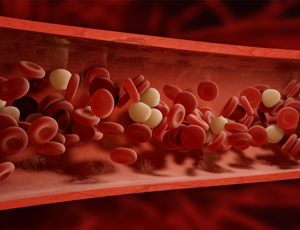 hög kolesterol orsak