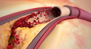 kärlkramp-bröstsmärta-blodkärl-åderförfettning