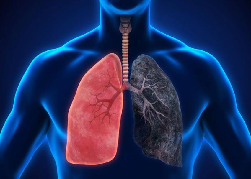 KOL-kronisk-lungsjukdom-rökning-nedsatt-lungfunktion-diabetes-hjärta-hälsa