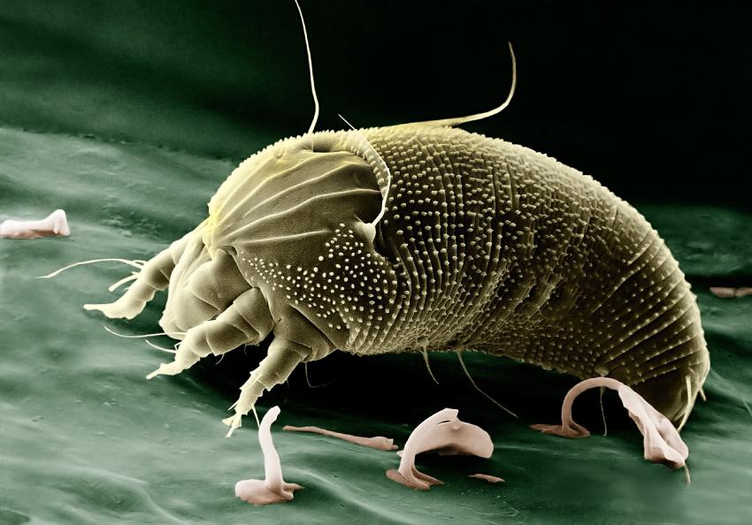 allergier reaktioner immunitet-