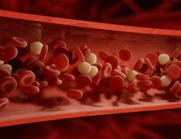 blodfetter högt kolesterol blodkärl diabetes hjärta sjukdomar åderförfettning ateroskleros